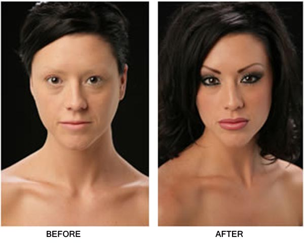 Burn Victims Before and After Pictures