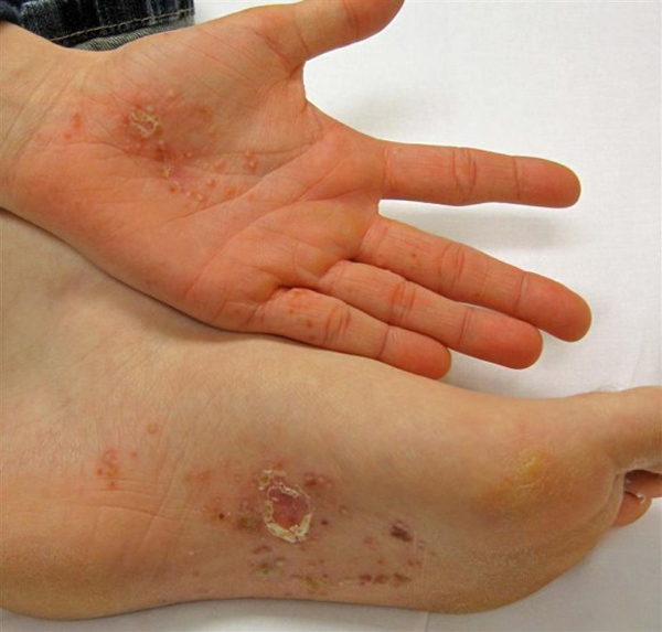 Dyshidrotic Eczema: Itch in Hand and Feet
