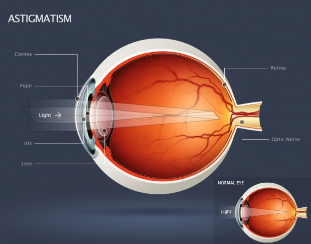 Astigmatism: Know Your Treatment Options